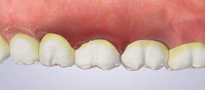Periodontal disease is also known as gum disease