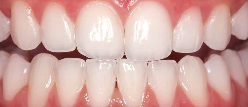 Opalescence In Home Teeth Whitening System Available Now For 65