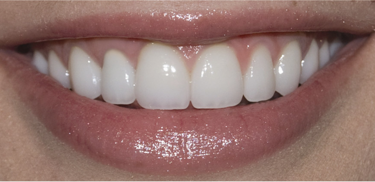 Periodontal Gum Disease Archives Russell D Borth Dds