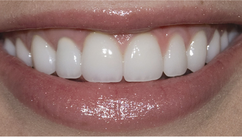Russell D. Borth DDS in Corpus Christi does Porcelain Veneers