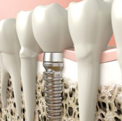 Dr. Borth does Dental implants